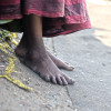 """I have walked all my life. My feet have lost all sensation."